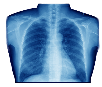 X-rays Chest Icon - Chest X Ray Vector, HD Png Download , Transparent Png  Image - PNGitem