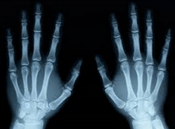 X Rays Transparent Png Images Stickpng Hand xray png cliparts, all these png images has no background, free & unlimited downloads. stickpng